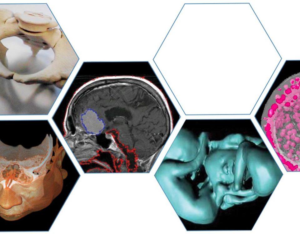 3d-doctor-technologia-3d-w-medycynie