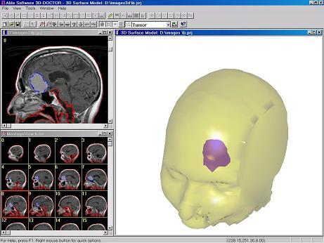 Analiza tomografu - 3D Doctor