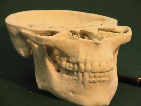 Wydruk 3D kości żuchwy