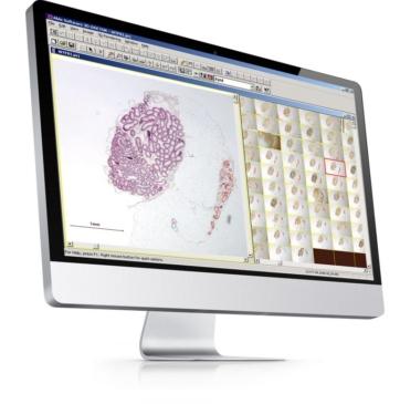 Obraz uzyskany z mikroskopu w skali źródłowej