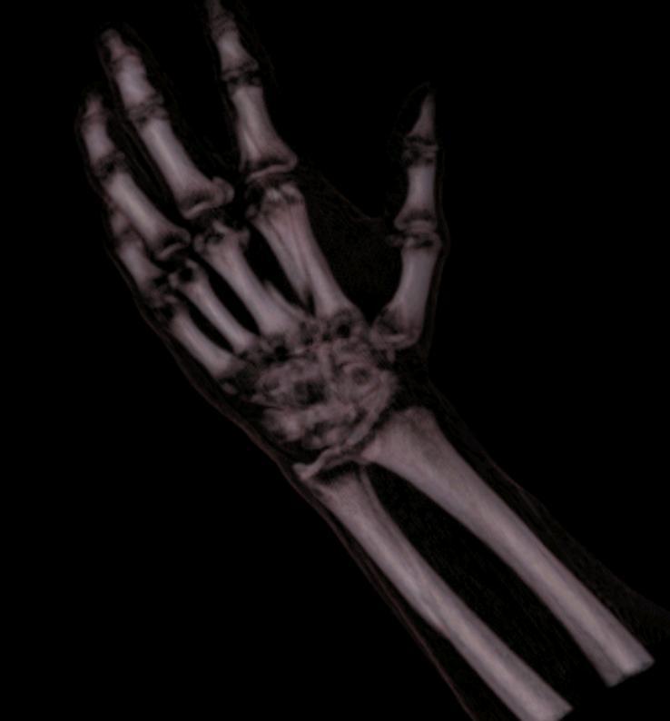 Rendering objętości - ręka - 3D Doctor