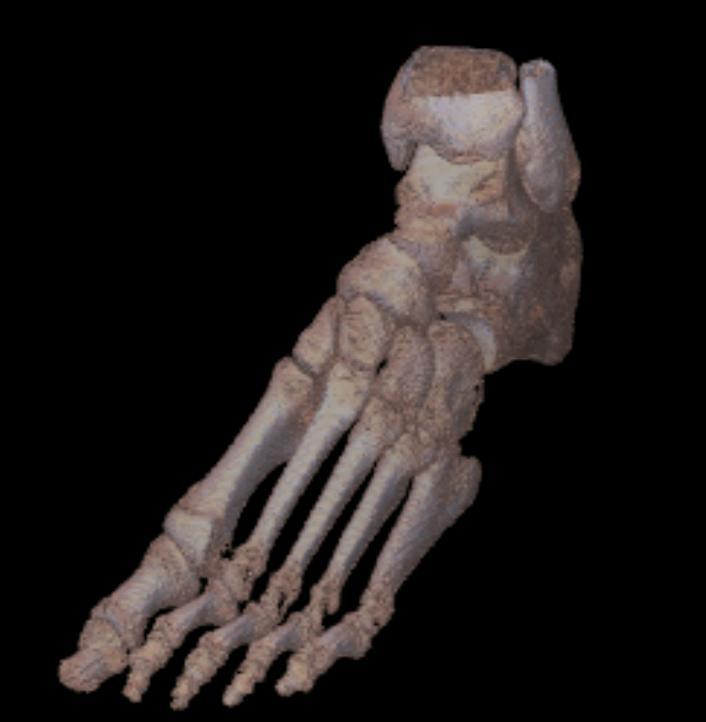 Rendering objętości - stopa - 3D Doctor