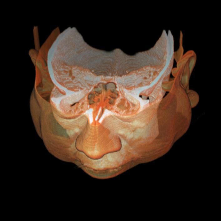 Rendering objętości - czaszka - 3D Doctor