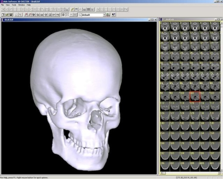 Wygląd czaszki w programie 3D Doctor